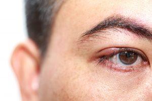 Síntomas de la retinopatía diabética2