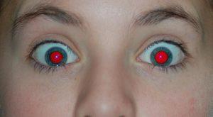 Revisión oftalmológica3